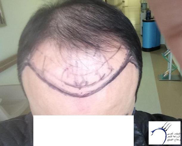 (تحديث www.hairarab.comb4fa