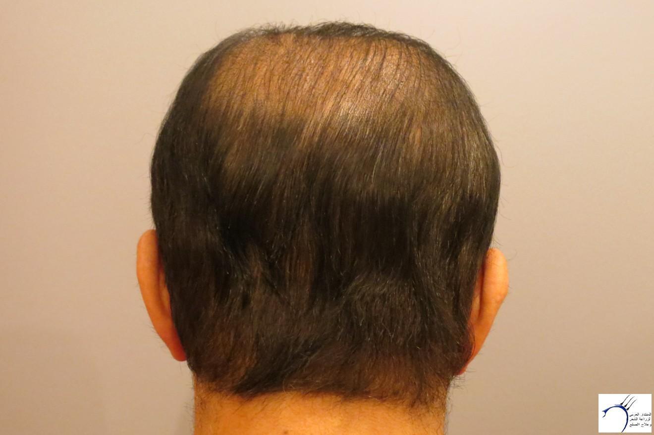 هير((تحديث www.hairarab.comb5fd