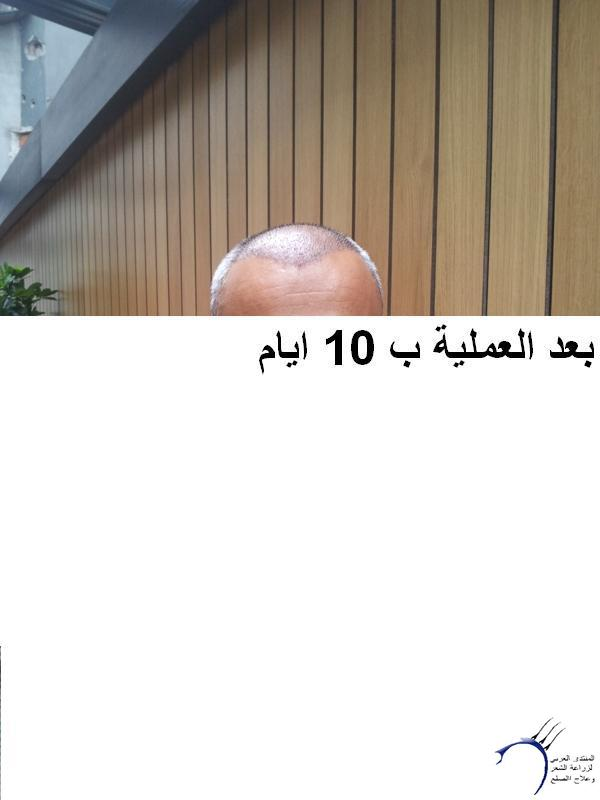 زراعتي الدكتور محمد جوتشلو- وكما www.hairarab.comb628
