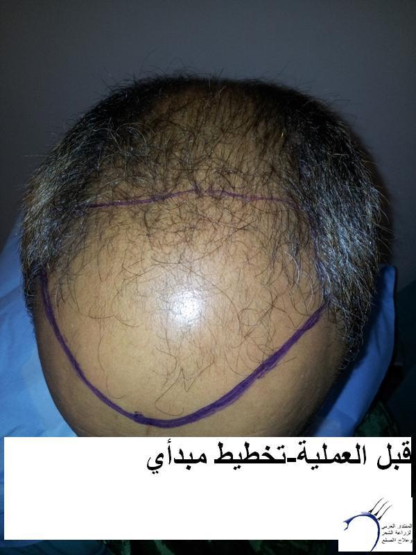 زراعتي الدكتور محمد جوتشلو- وكما www.hairarab.comb653
