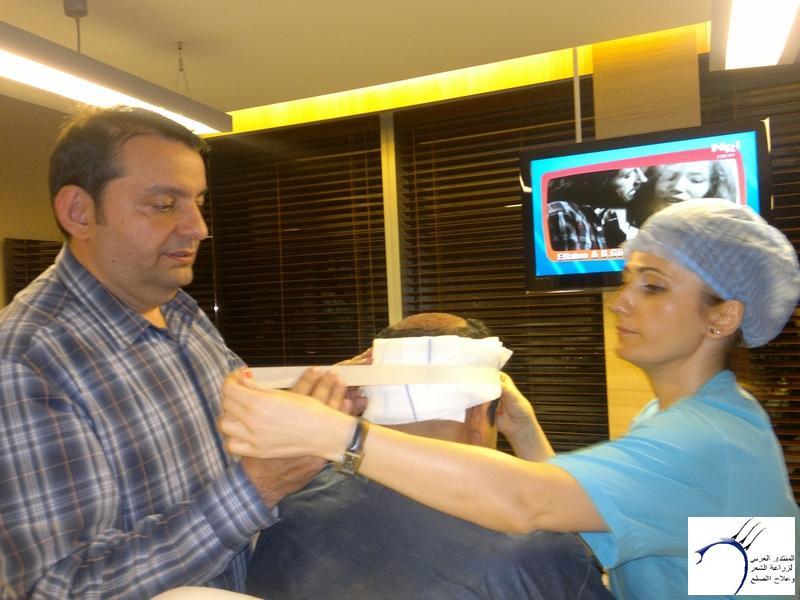 تجربتي لزراعة الشعر تركيا الدكتور www.hairarab.comb6f5