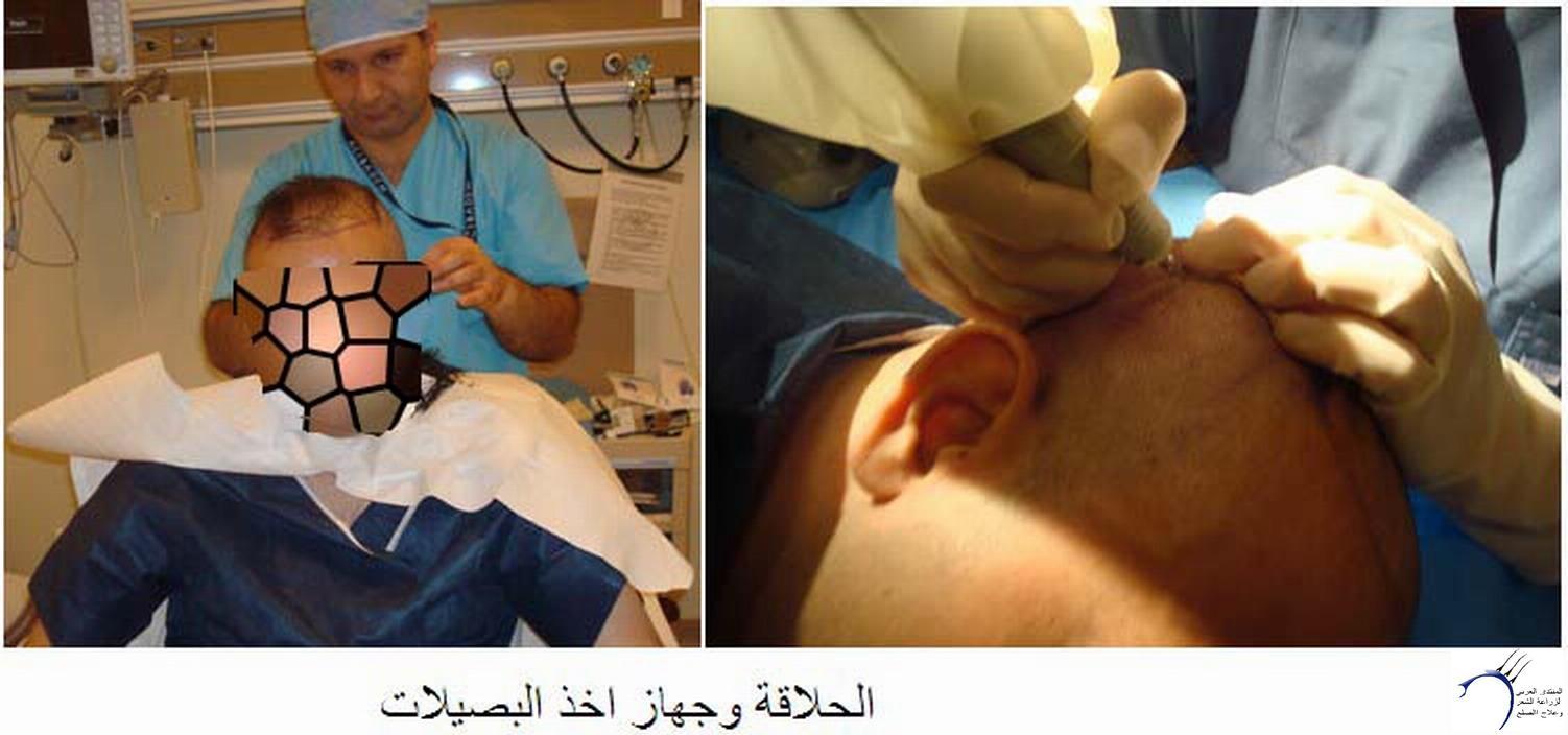 موضوعي زراعة الشعر 18-11-2011 _ستار www.hairarab.comb70e
