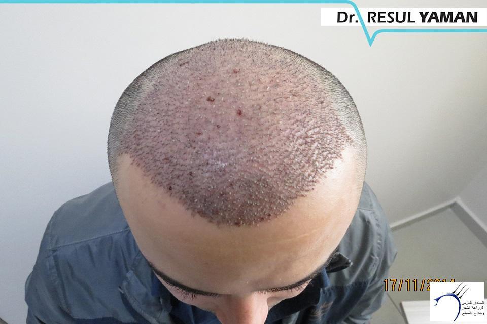 4800 واحد-الدكتور www.hairarab.comb732