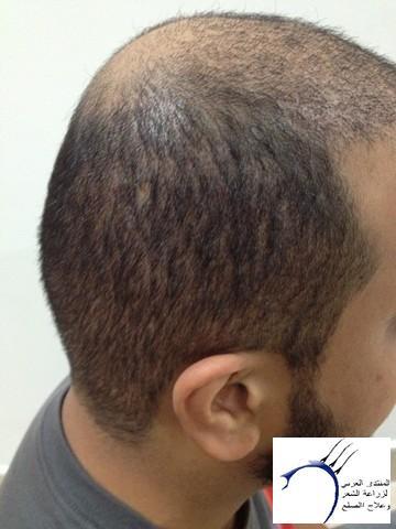 أقدم تجربـتي لزراعة الشعر مركـز www.hairarab.comb791