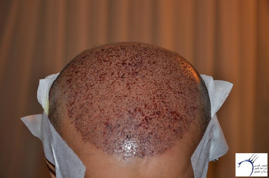 اليكم نتيجة زراعتي الاولى أشهر www.hairarab.comb7fd