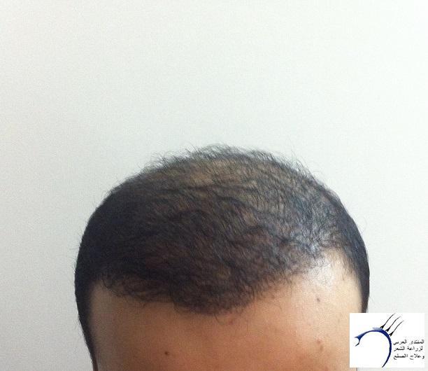 www.hairarab.comb8d9