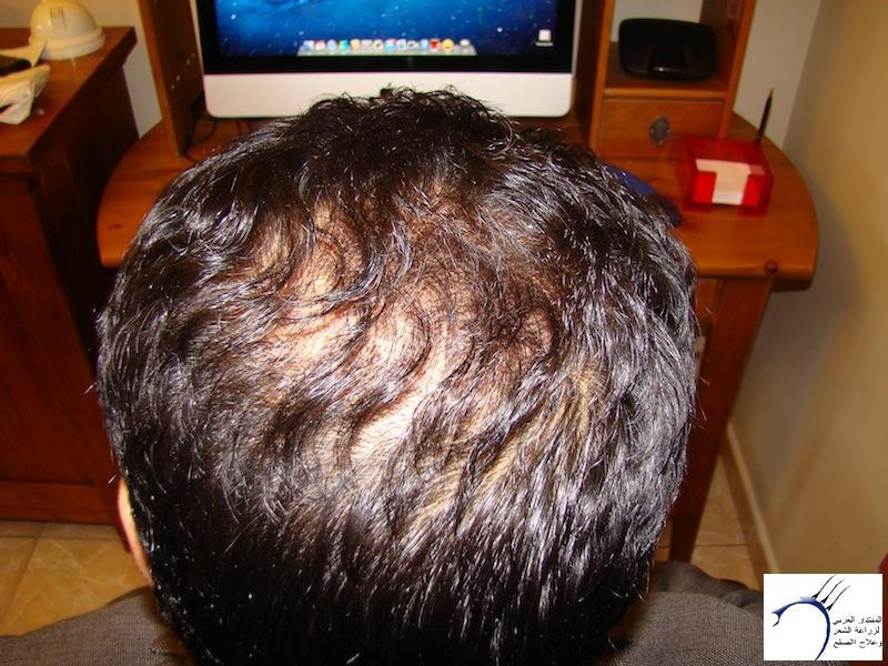 تجربتي لزراعة الشعر تركيا الدكتور www.hairarab.comb8f5