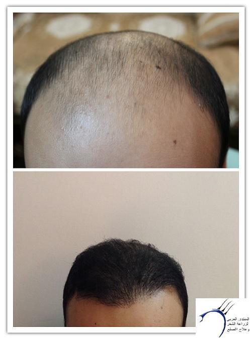 www.hairarab.comb936