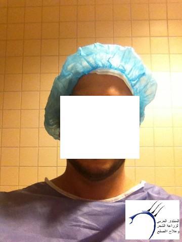 أقدم تجربـتي لزراعة الشعر مركـز www.hairarab.comb9a9