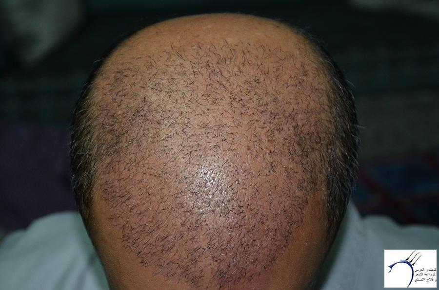 اليكم نتيجة زراعتي الاولى نتيجة www.hairarab.comba0b