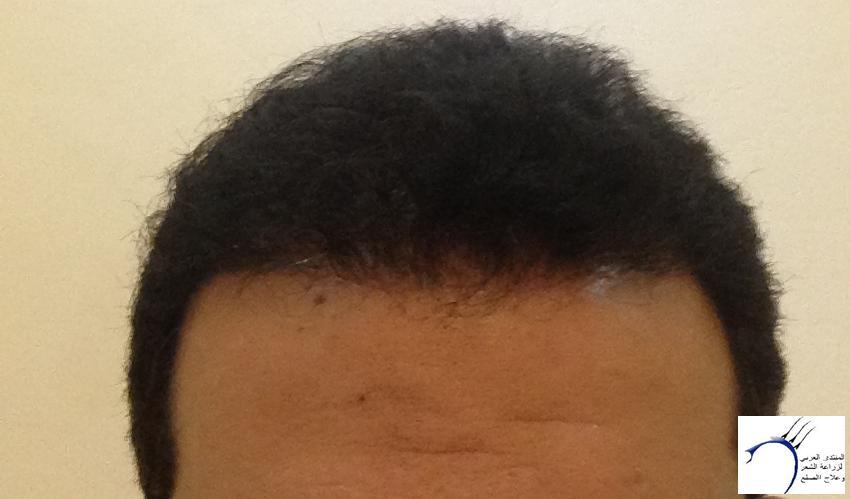 تجربتي لزراعة الشعر الدكتور Tayfun www.hairarab.comba87