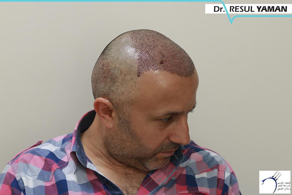 نتيجة السيد Emin Demir زراعة www.hairarab.combbe4