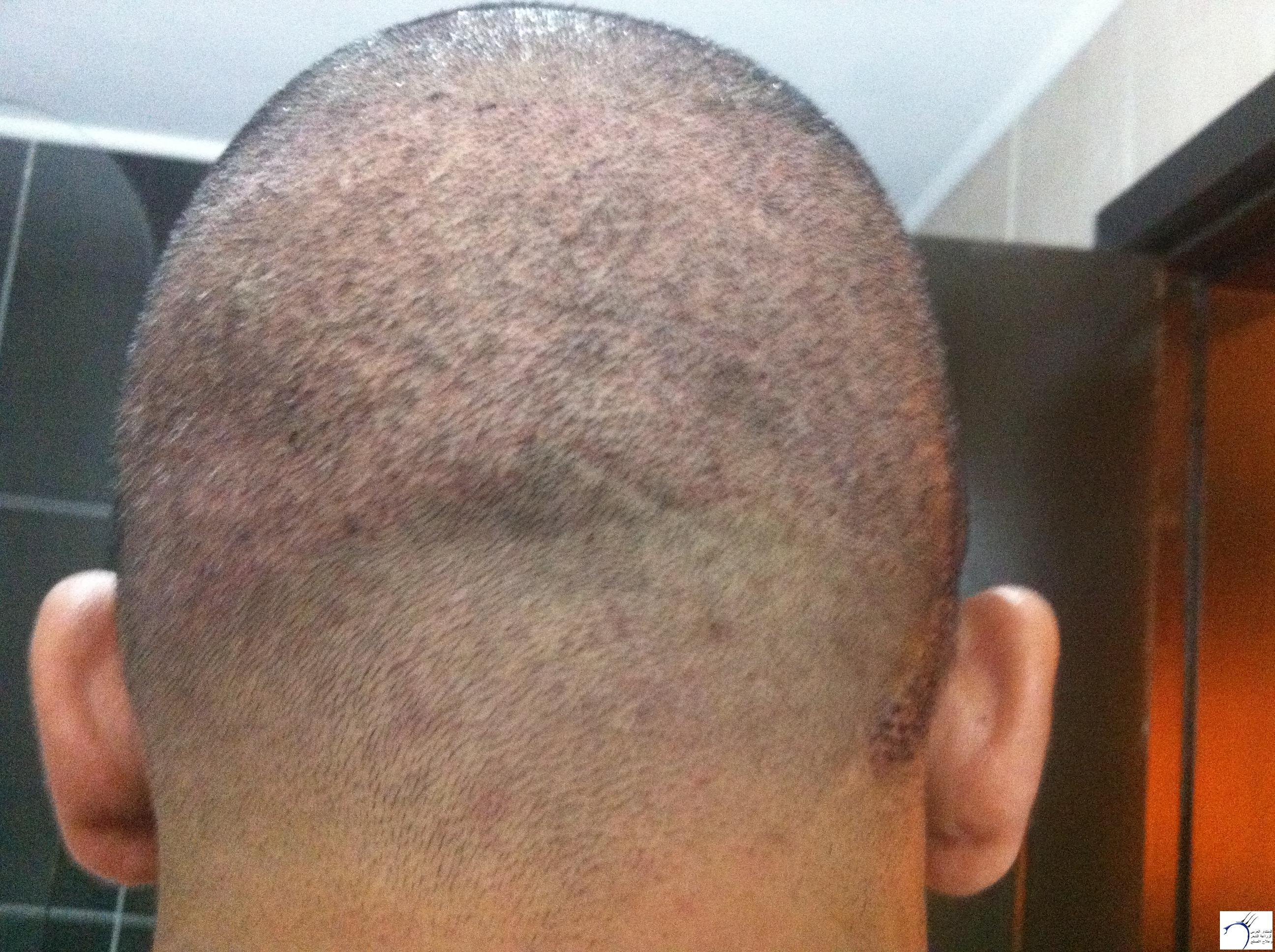 تجربتي لزراعة الشعر الدكتور Tayfun www.hairarab.combc31