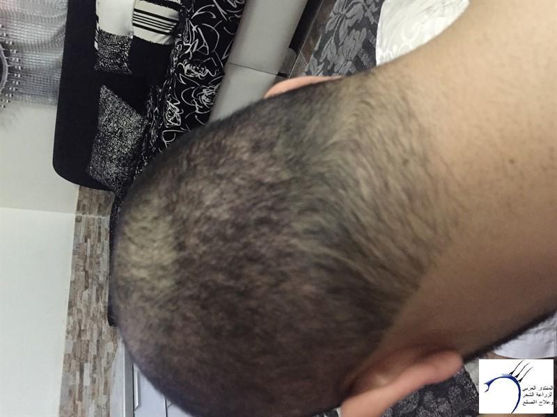 06-05-2015 www.hairarab.combcc0