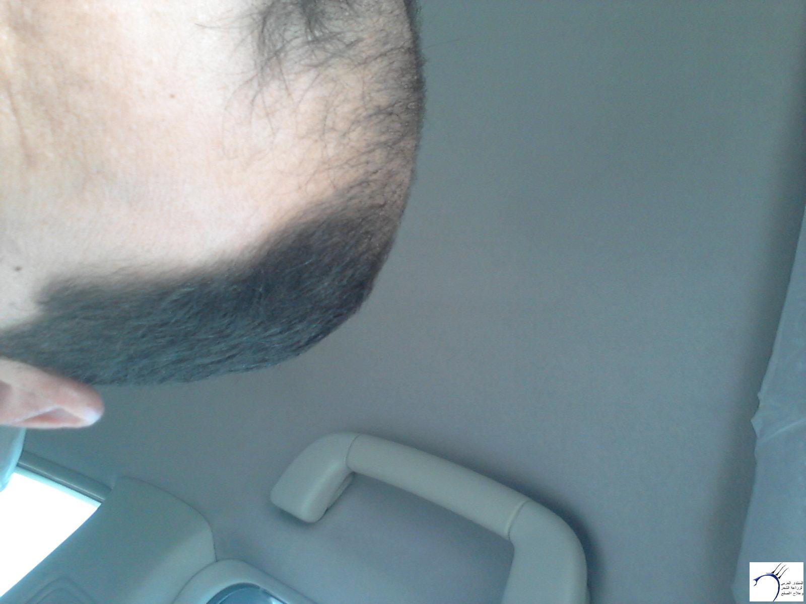 (تحديث بعدسنة)تجربتي بالصور الاخصائي محمد www.hairarab.combd75