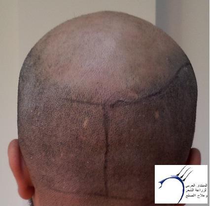 تجربتي الدكتور سركان Medhir نركيا www.hairarab.combd8e