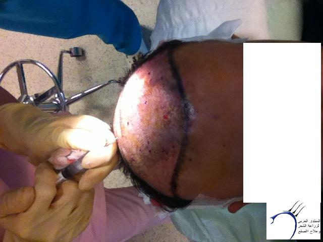 تجربتي لزراعة الشعر الدكتور Tayfun www.hairarab.combf3e