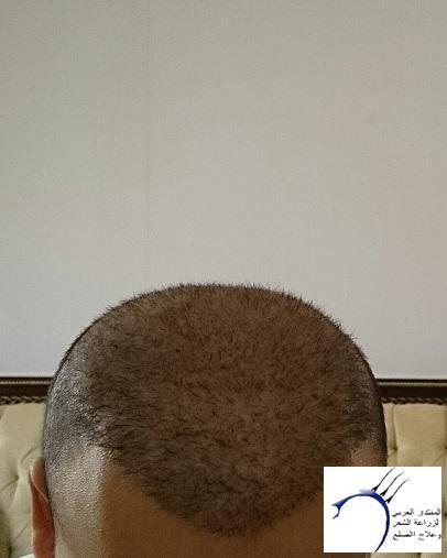 www.hairarab.combf9b