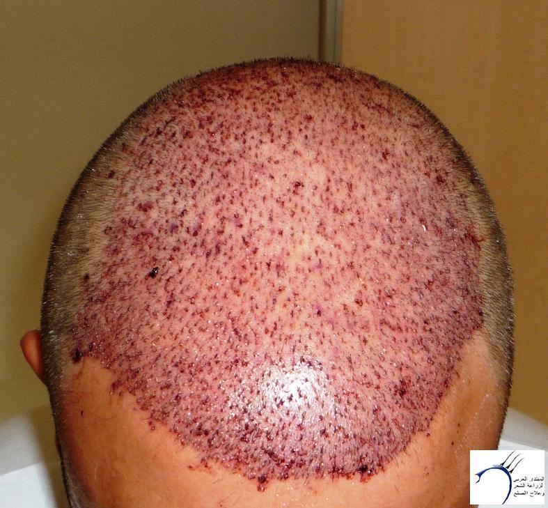 تجربتي CEVRE Hospital (2012-7-15 www.hairarab.combfa0