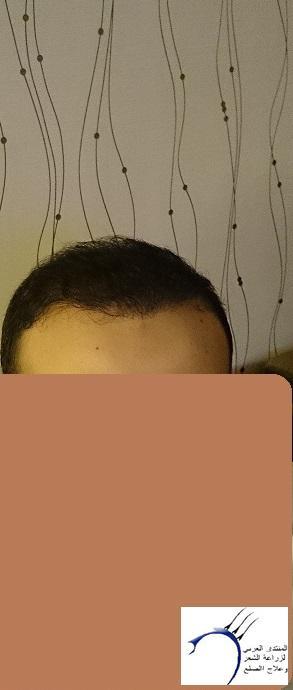www.hairarab.comc01b