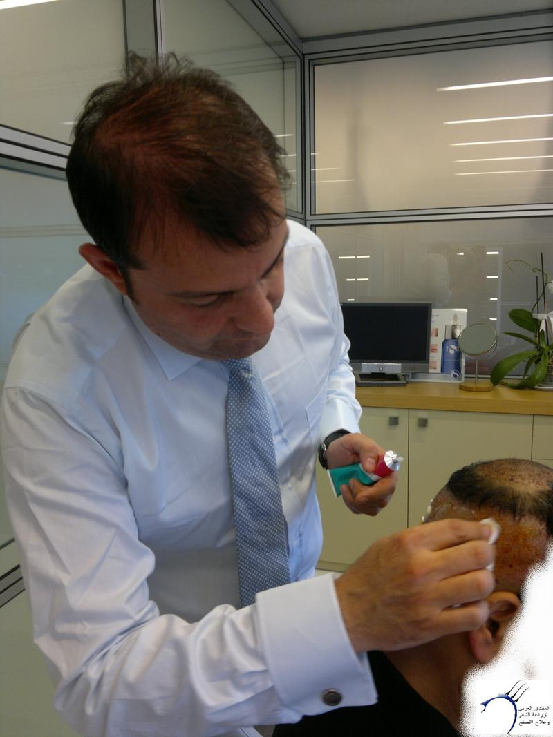 تجربتي لزراعة الشعر تركيا الدكتور www.hairarab.comc0b6