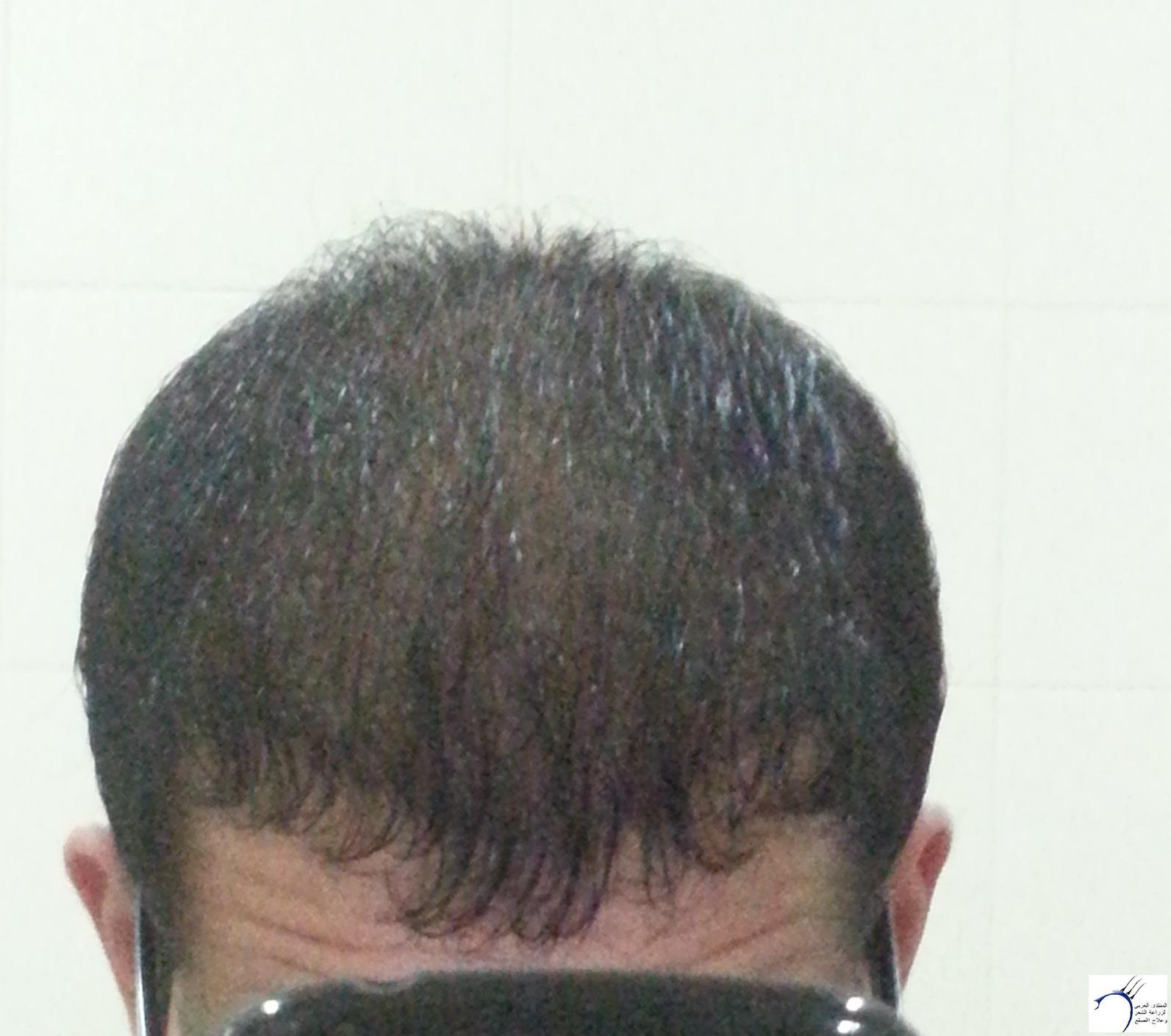 www.hairarab.comc0cb