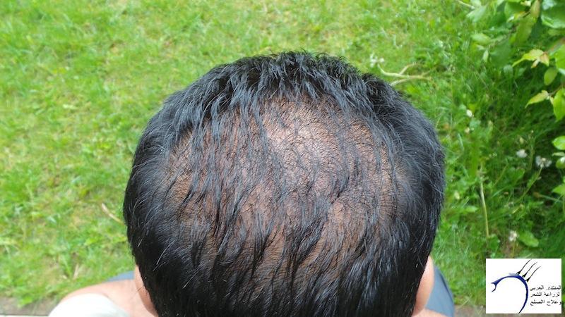 تجربتي لزراعة الشعر تركيا الدكتور www.hairarab.comc169