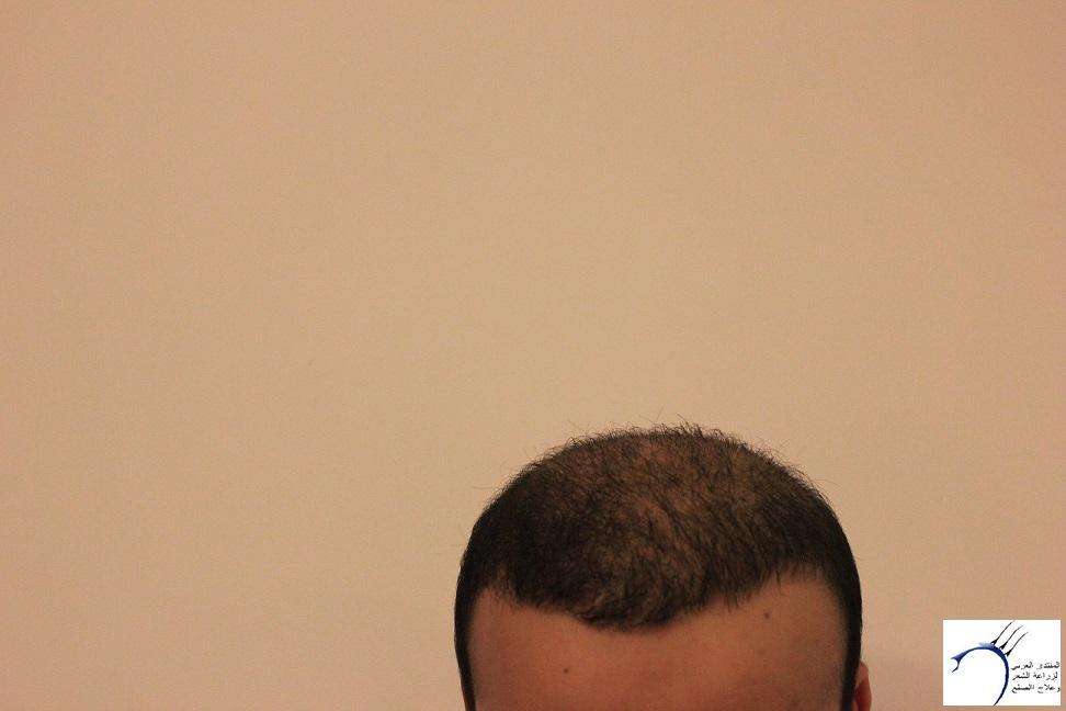 www.hairarab.comc1e5
