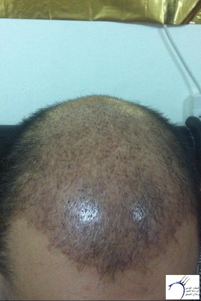 (التحديث الأول شهرين تفاصيل زراعتي www.hairarab.comc400