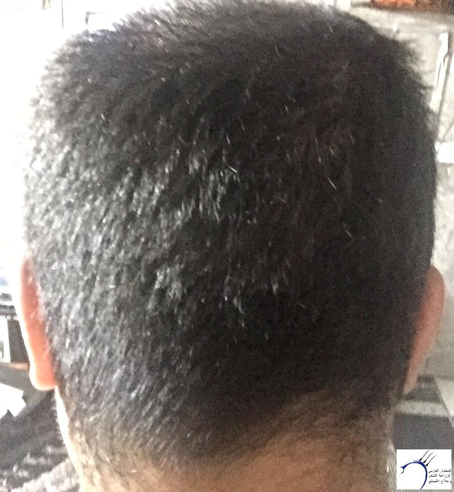 تجربتي رويال تحديث الشهر الرابع www.hairarab.comc413