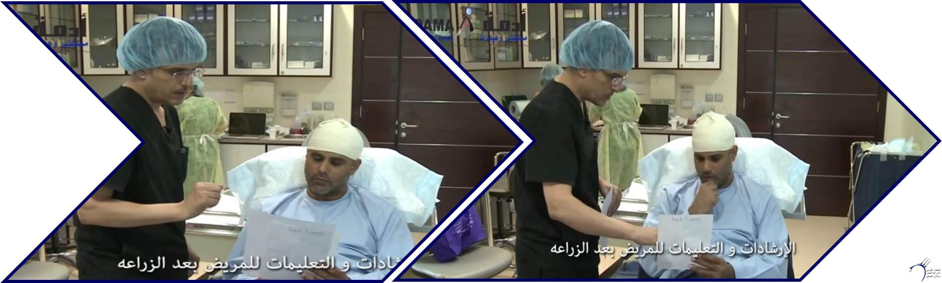 مشاكل الصلع وزراعة الشعر للدكتور www.hairarab.comc455