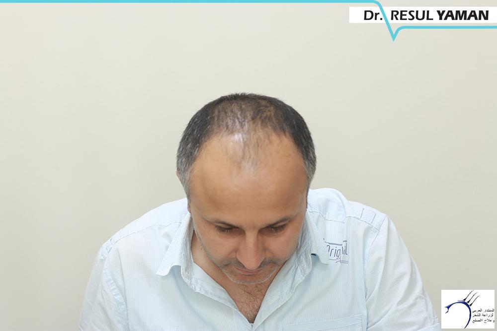 نتيجة السيد Emin Demir زراعة www.hairarab.comc472