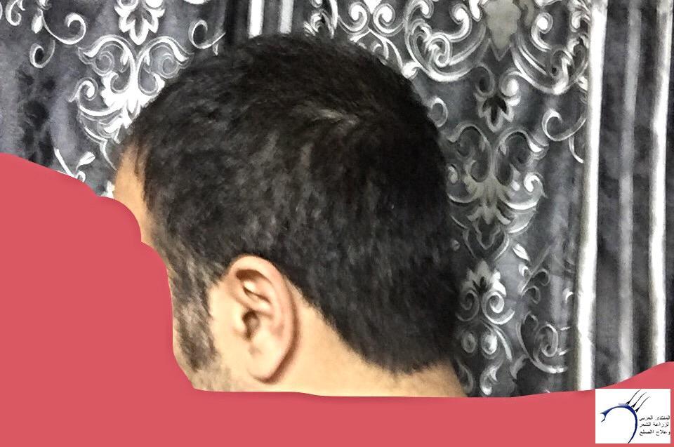تجربتي رويال تحديث الشهر الرابع www.hairarab.comc52a