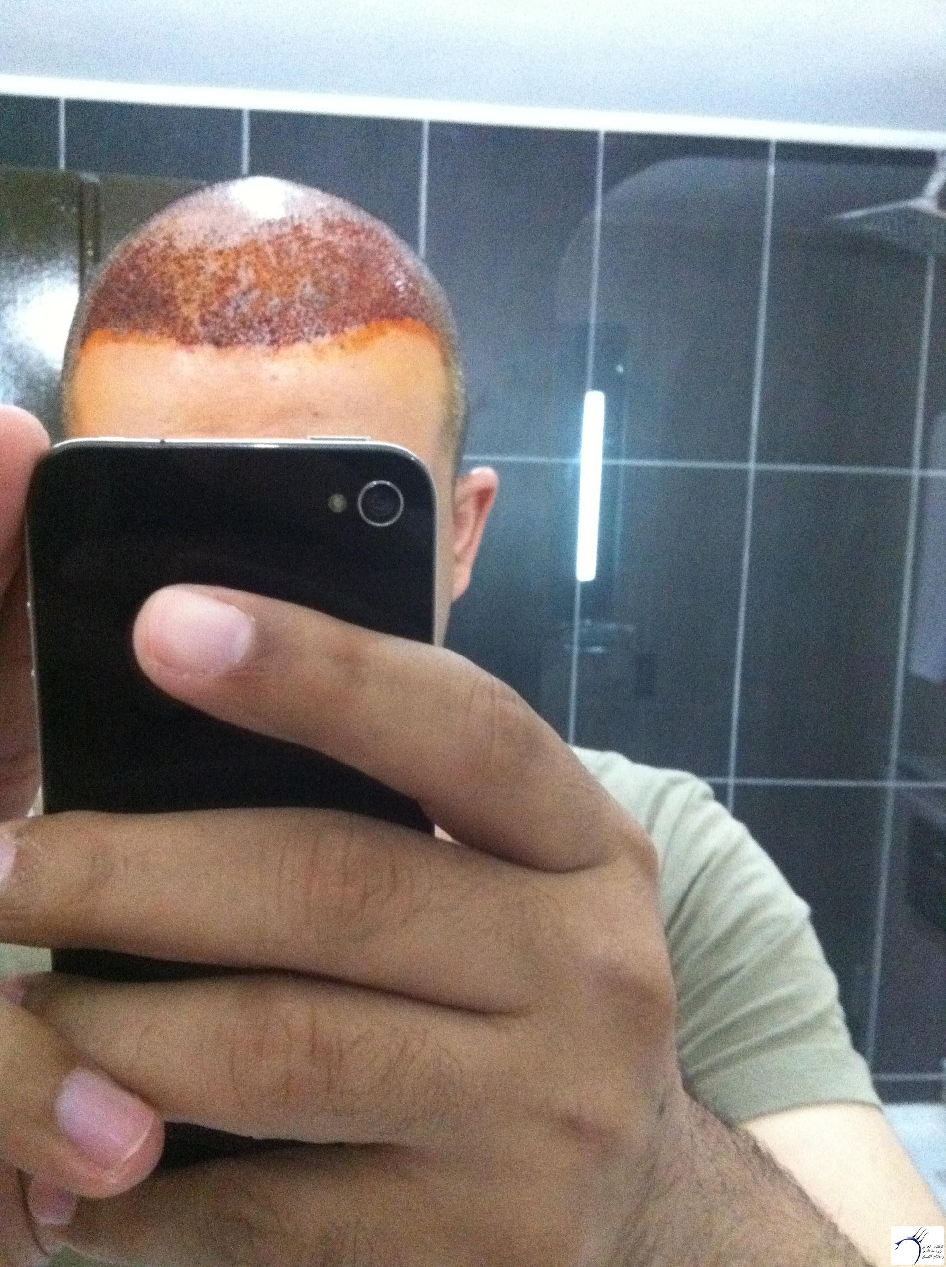 تجربتي لزراعة الشعر الدكتور Tayfun www.hairarab.comc6b7