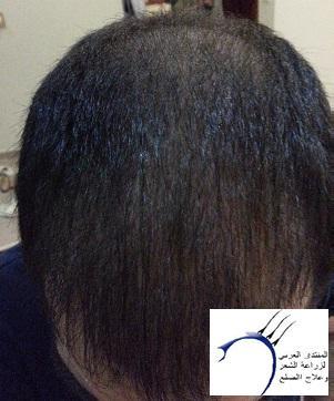 www.hairarab.comc728