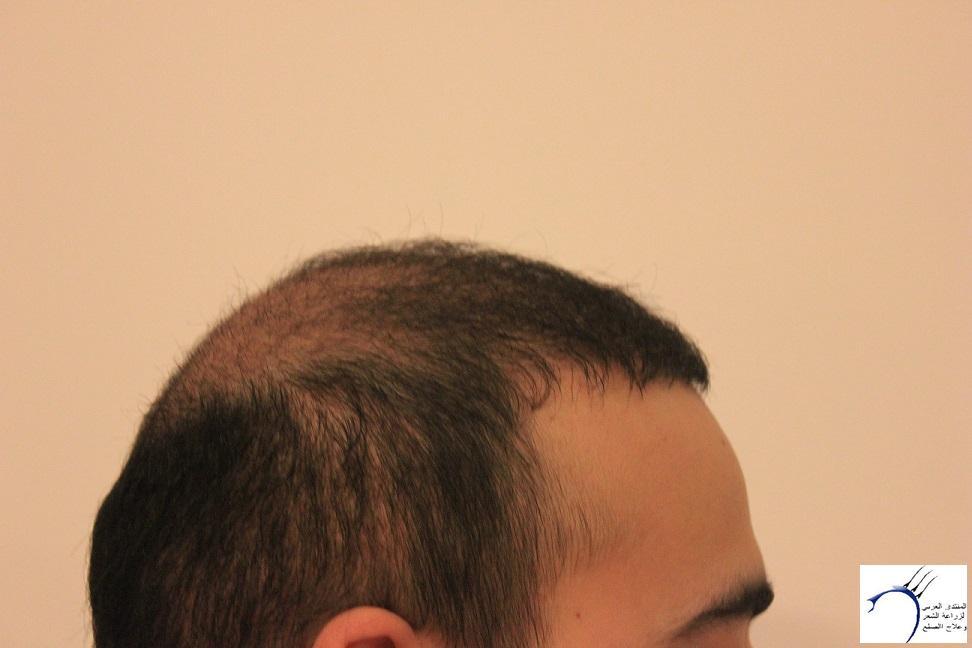 www.hairarab.comc759