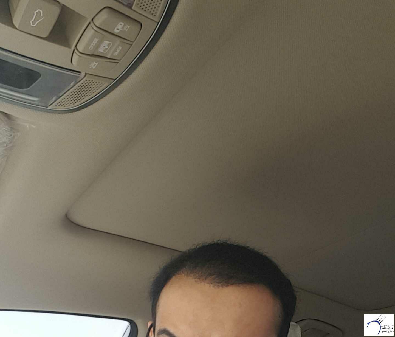 الدكتور www.hairarab.comc7ad