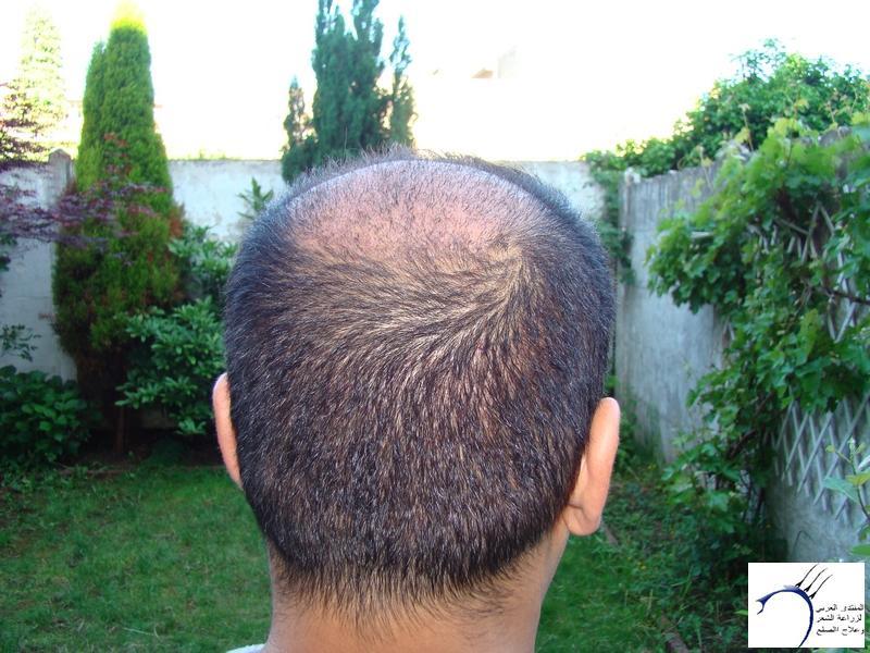 تجربتي لزراعة الشعر تركيا الدكتور www.hairarab.comc7ba