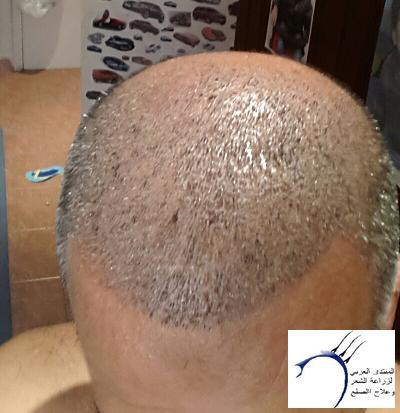 www.hairarab.comc85e