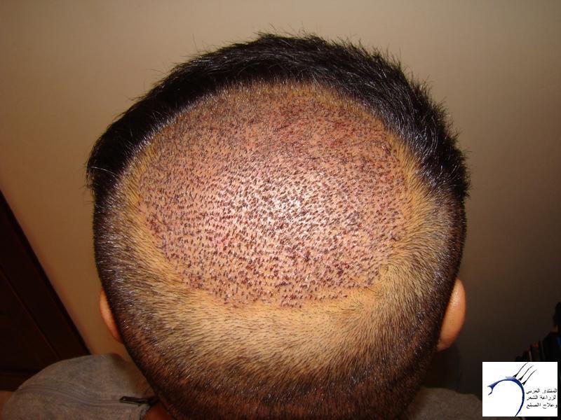 تجربتي لزراعة الشعر تركيا الدكتور www.hairarab.comc9f9