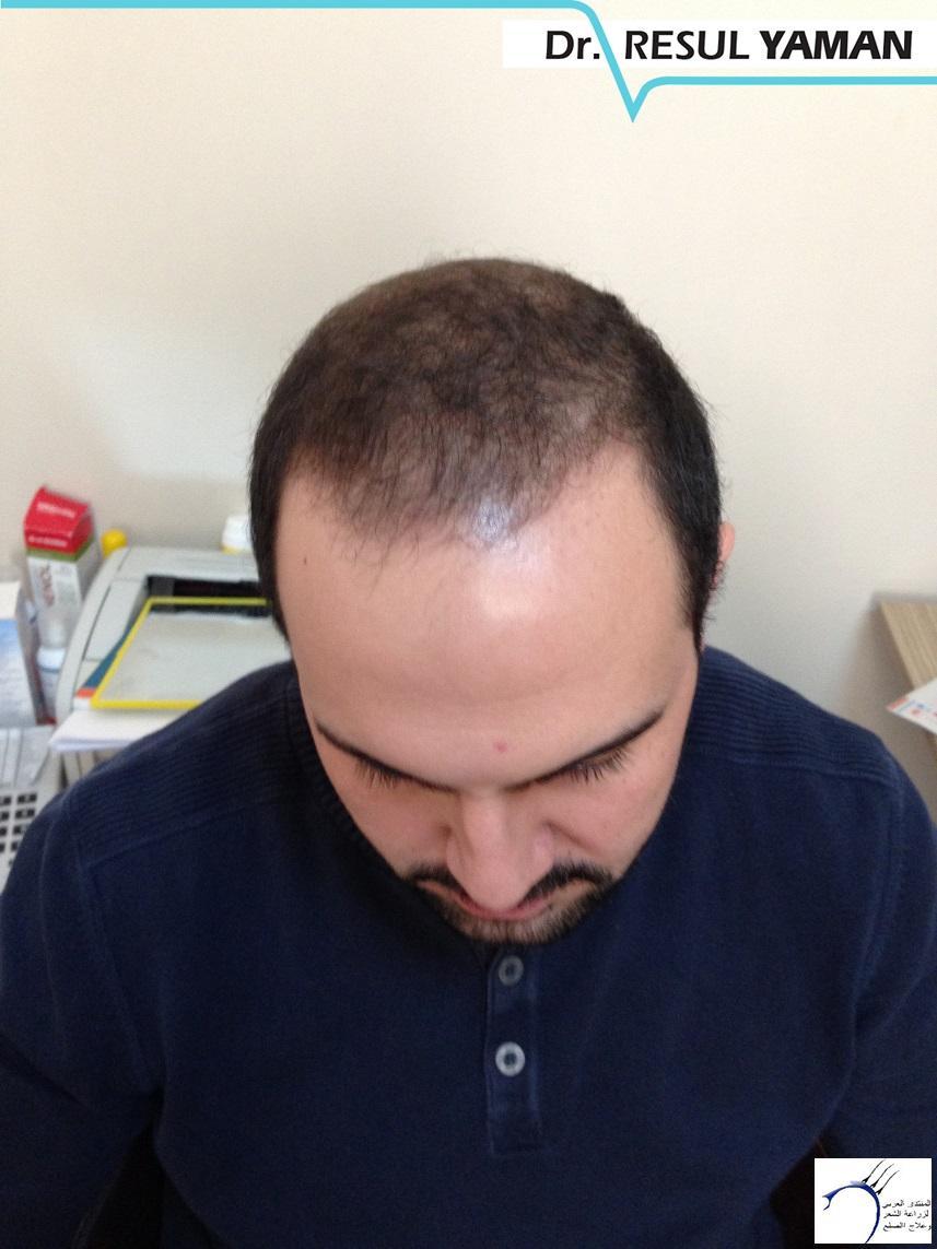 نتيجة زراعة 4600 بصيلة شهرا www.hairarab.comcbda