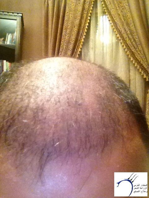 تجريتي والدكتور سركان (للعضو محمد) www.hairarab.comcce1