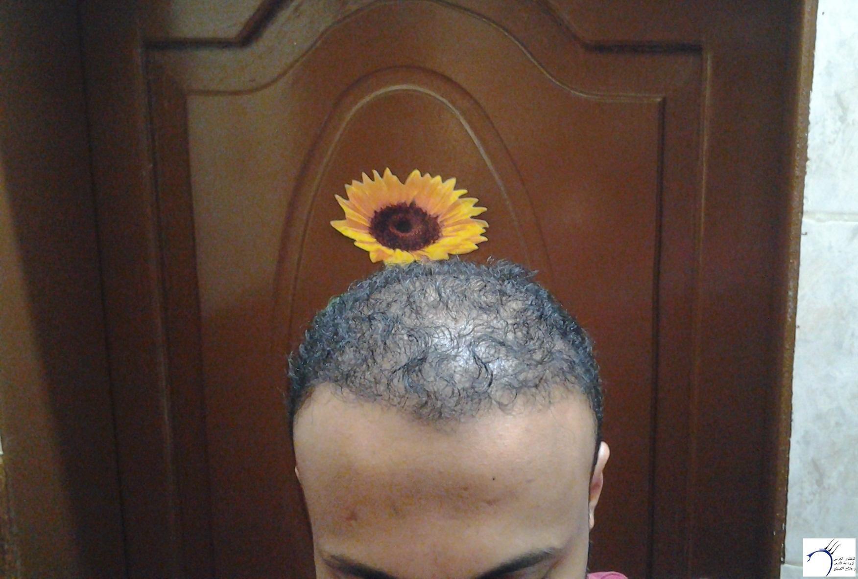 الدكتور (تحديث السابع) www.hairarab.comcd56