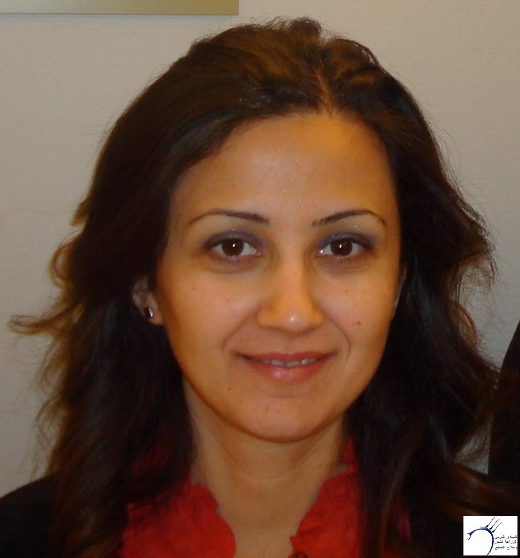 موضوعي زراعة الشعر 18-11-2011 _ستار www.hairarab.comcf11