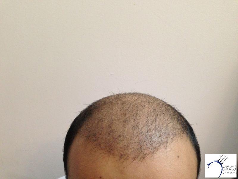 www.hairarab.comd0e6
