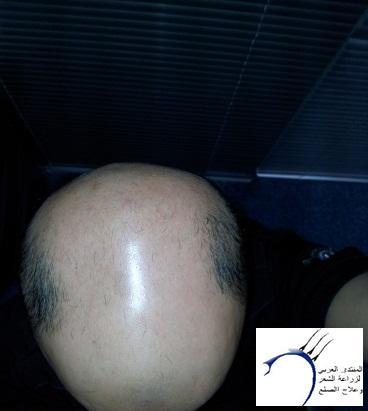 تجربتي تركيا الدكتور سركان أشهر www.hairarab.comd270