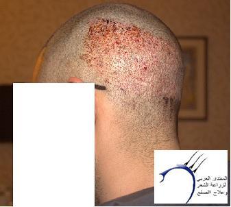 www.hairarab.comd2f7