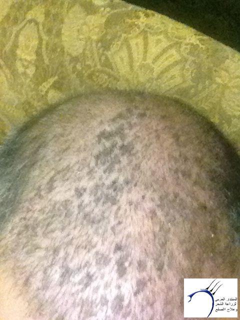 تجريتي والدكتور سركان (للعضو محمد) www.hairarab.comd361