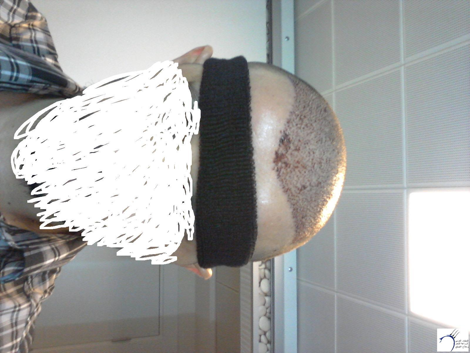 (تحديث بعدسنة)تجربتي بالصور الاخصائي محمد www.hairarab.comd372