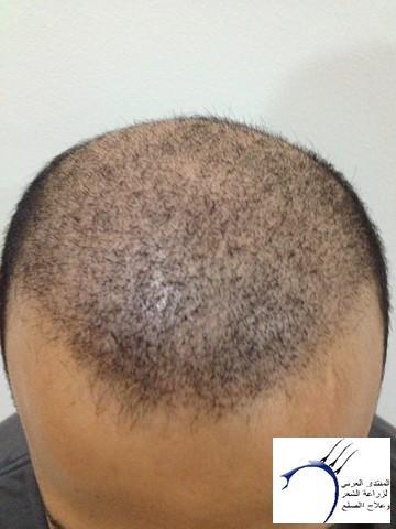 أقدم تجربـتي لزراعة الشعر مركـز www.hairarab.comd40b